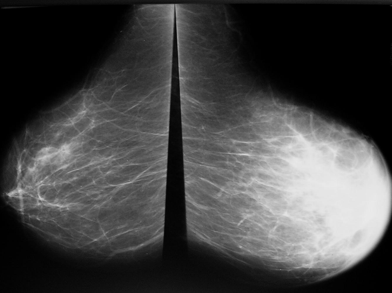 Kemik memesinin tedavisi: zor ama mümkün