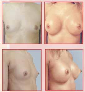 Mulheres depois de operação com um peito