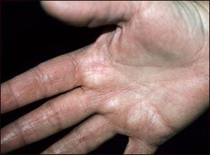Atopichesky la dermatitis sobre la cabeza del niño