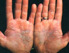 Las enfermedades cutáneas en los pies la psoriasis
