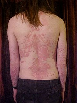Les aspects du psoriasis le traitement