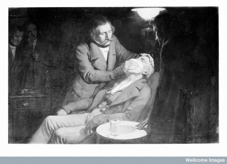 Anesthesia using Ether
