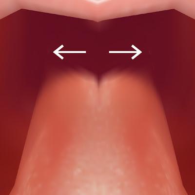 舌の付け根の拡大