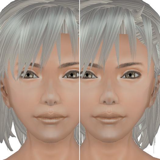 小鼻の歪み比較