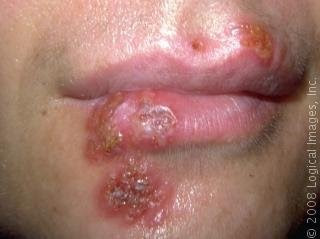 Natural Cure for Herpes and the Best Herpes Treatment