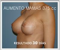 mamoplastia_aumento_cirujano_plastico