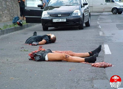 Gory Pictures of Accident Victims http://akuterrer.blogspot.com/2007/09/gory-accident-popeye-arms.html