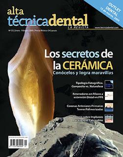 protesis sobre implantes revista