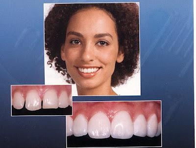 tooth laminates