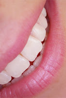 sonrisa blanca, blanqueamiento