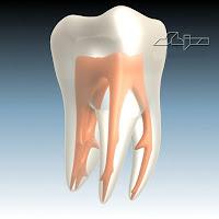 extraccion dental, diente, tooth