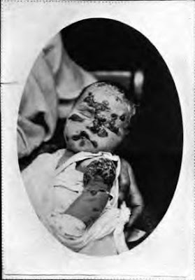 Fotografie 2měsíčního chlapce z Anglie pořízená po smrti způsobené očkováním ve 36 dnech. Jde o závažnou a častou formu fatální vakcinace. Podle dr. Higginse http://www.whale.to/vaccine/higgins_b.html