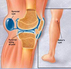 Penyakit Tulang, Sendi dan Otot: Penyakit Otot, Bursa & Tendon