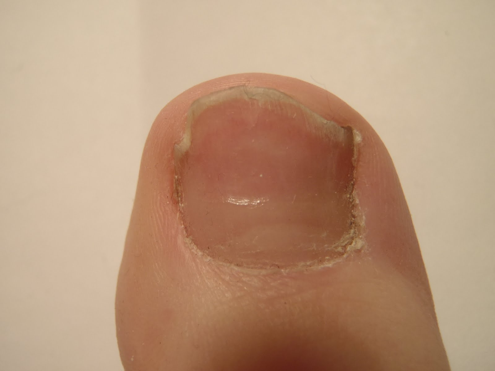 The nail fungus blog: Toenails