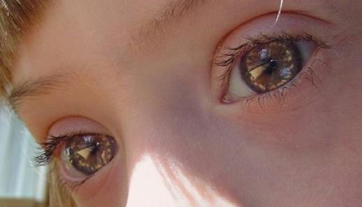 Síndrome de Down... reflexiones