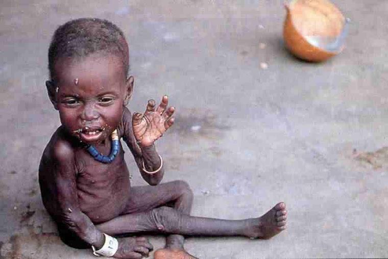 11 niños mueren de hambre cada minuto
