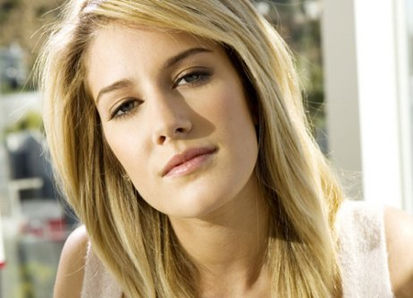 heidi montag before plastic surgery. Heidi Montag - Plastic surgery