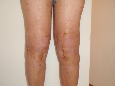 hassle slumbering after knee surgical treatment
