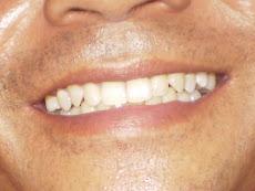 Senyum...