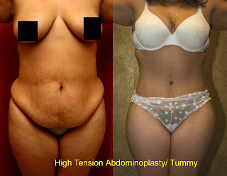 Stretch Marks Removal In Beverly Hills Is Womens Top Priority After Pregnancy Women Are Shocked To Have Developed Ugly