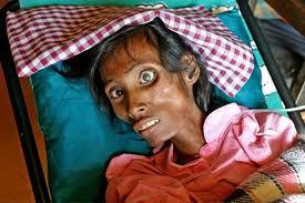 http://www.opoae.com/2013/03/sejarah-awal-mula-lahirnya-penyakit-hiv-aids.html