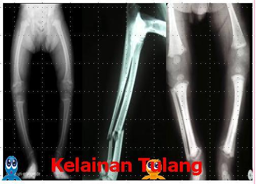 Kelainan Dan Gangguan Pada Tulang b Kelainan / Gangguan Pada