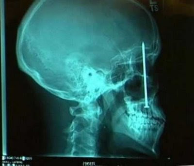 Unbelievable X-rays (12) 2