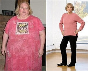 Amazing Weight Loss Success Stories (30) 21
