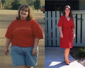 Amazing Weight Loss Success Stories (30) 22