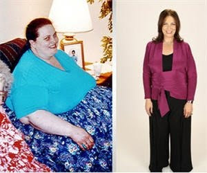 Amazing Weight Loss Success Stories (30) 20