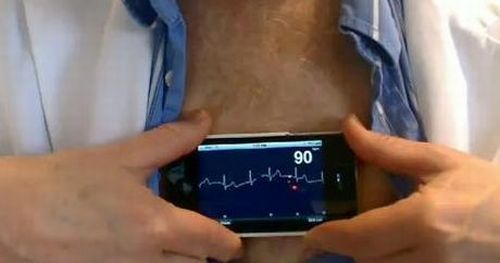 posterior leads ecg placement