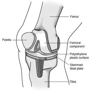 Musculo Skeletal Nursing Knee Replacement Pictures