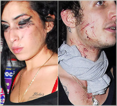 amy+w+n+blake Amy Winehouse In Bloody Brawl With Husband
