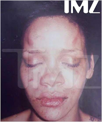 rihanna+face+mashed Police Pic: Rihanna After Chris Brown Assault