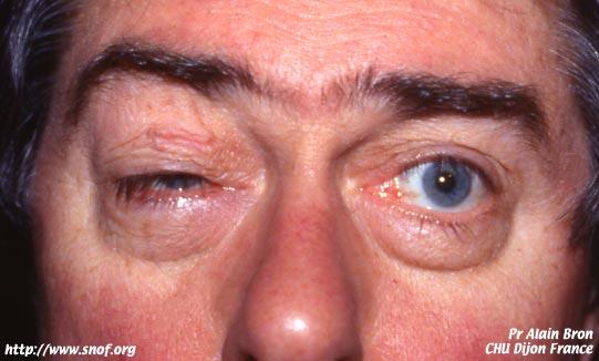 Hombre padeciendo de miopatia