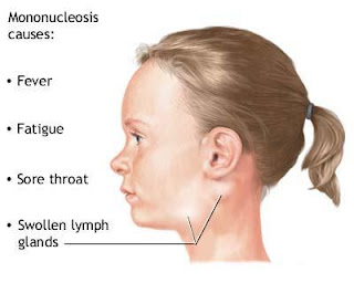 Mononucleosis Treatments, Mononucleosis Cures, Mononucleosis Prevention