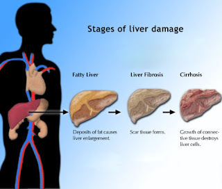 healthy and fit: cirrhosis of the liver-symptoms,treatments,stages, Human Body