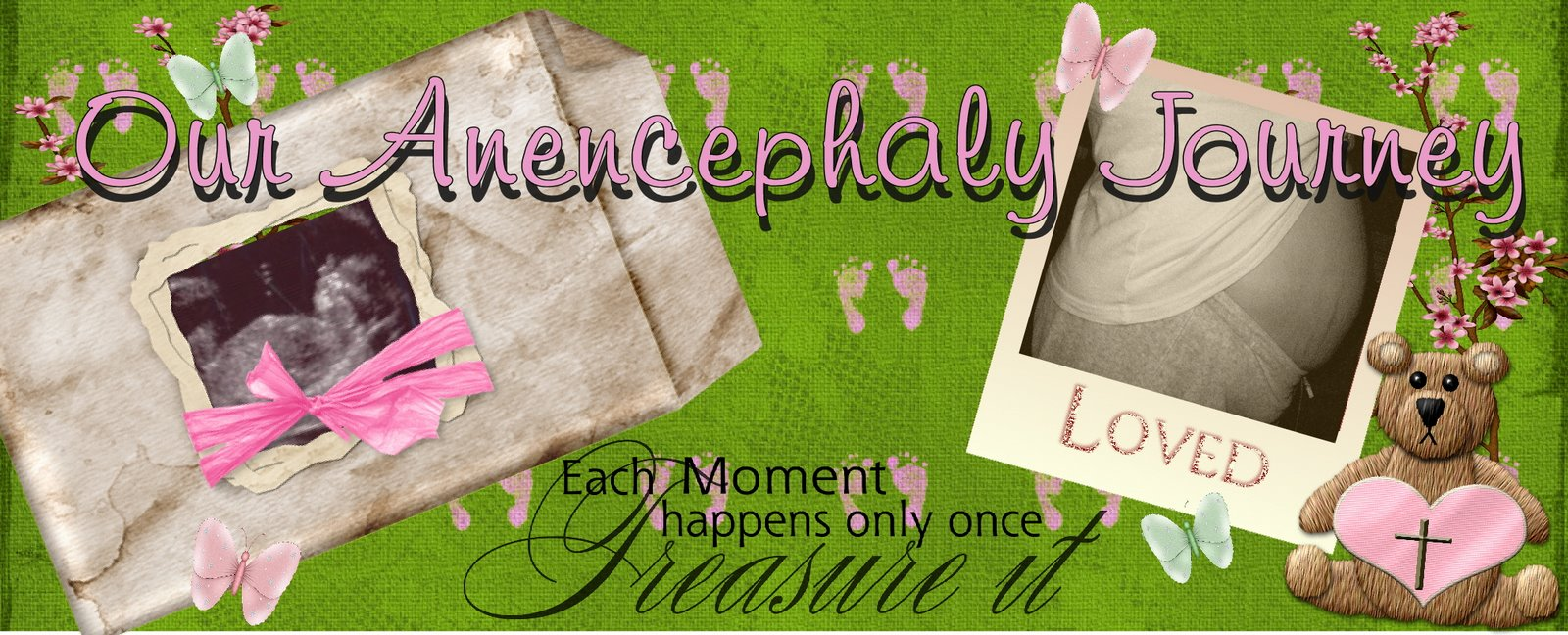 Our Anencephaly Journey