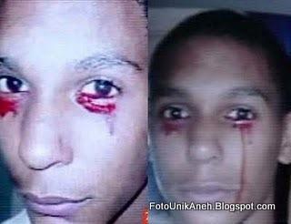 Seorang Remaja Pria Mengeluarkan Air Mata Darah Atau Menangis Darah