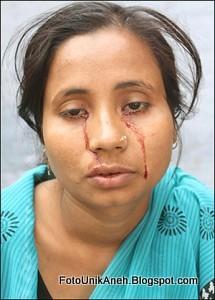 Seorang Wanita Asia Juga Dilaporkan Mengeluarkan Air Mata Darah Atau Menangis Darah