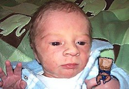 Ugliest Baby In The World