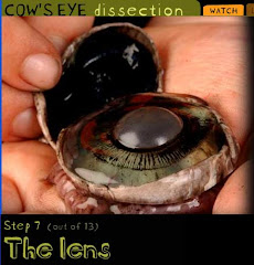 Cow's eye dissection (Exploratorium, San Francisco)