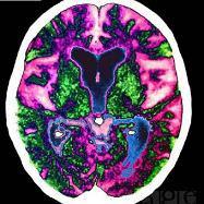 Medicina natural y un cerebro aquejado de Alzheimer