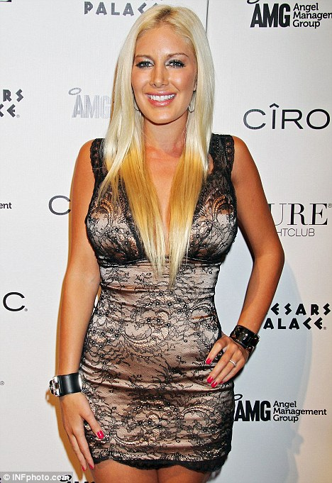 heidi montag after surgery people. heidi montag after surgery