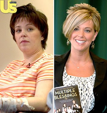 Kate Gosselin before and after photo.