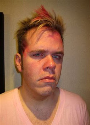 Perez Hilton was assaulted by the tour manager of the Black Eye Peas.