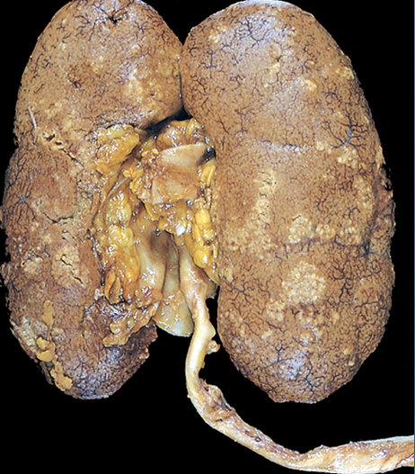 mbbs medicine (humanity first): acute pyelonephritis., Skeleton