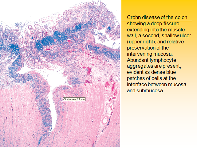 crohns disease research paper Find and download essays and research papers on crohn disease.