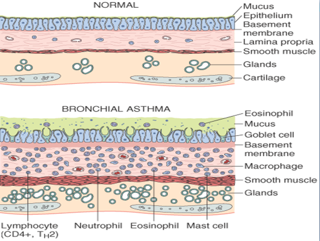 Mbbs Medicine Humanity First Asthma And Its Types