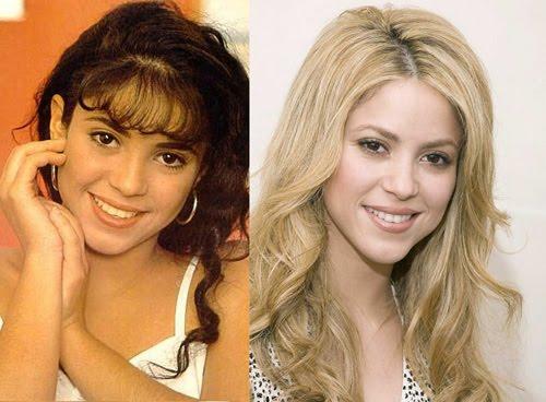 Shakira avant et après chirurgie esthétique